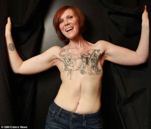 Kelly Davidson: Breast Cancer Survivor